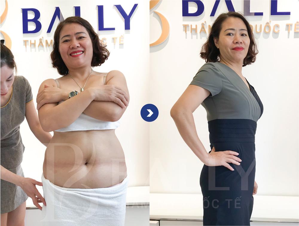 Hình ảnh khách hàng sau khi giảm béo INVI LIPO