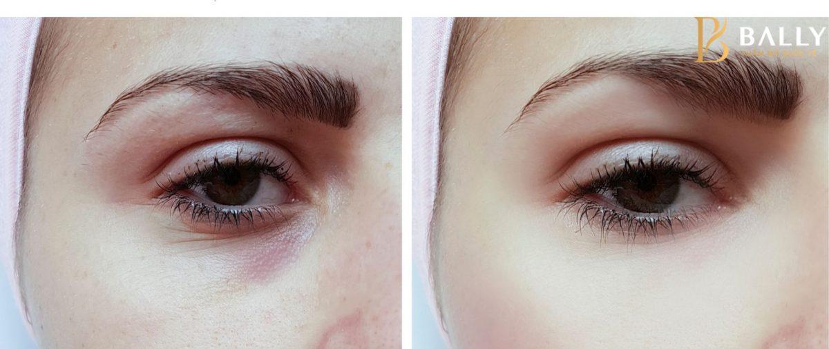 Cách trị quầng thâm mắt