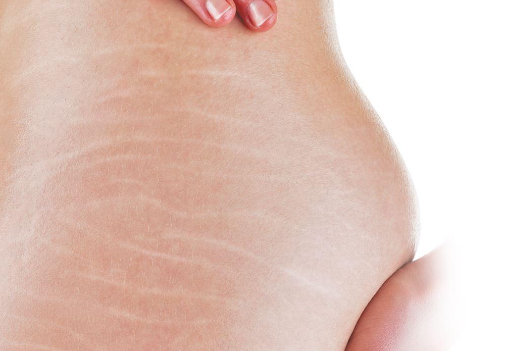 rạn da sau sinh