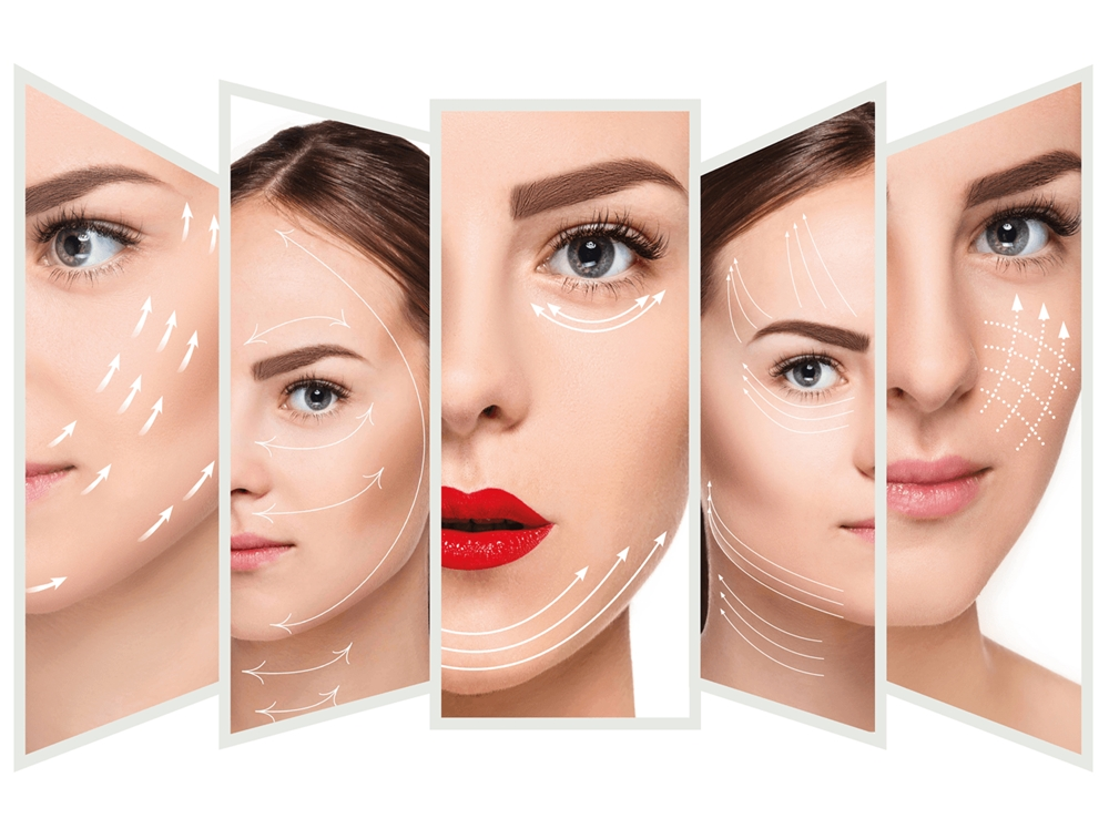 phương pháp cấy chỉ căng da mặt