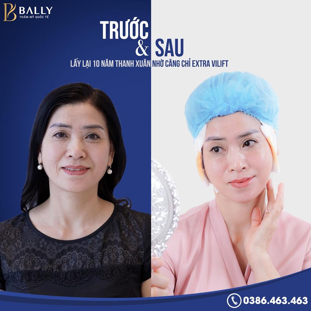 Tác dụng của phương pháp căng chỉ da mặt