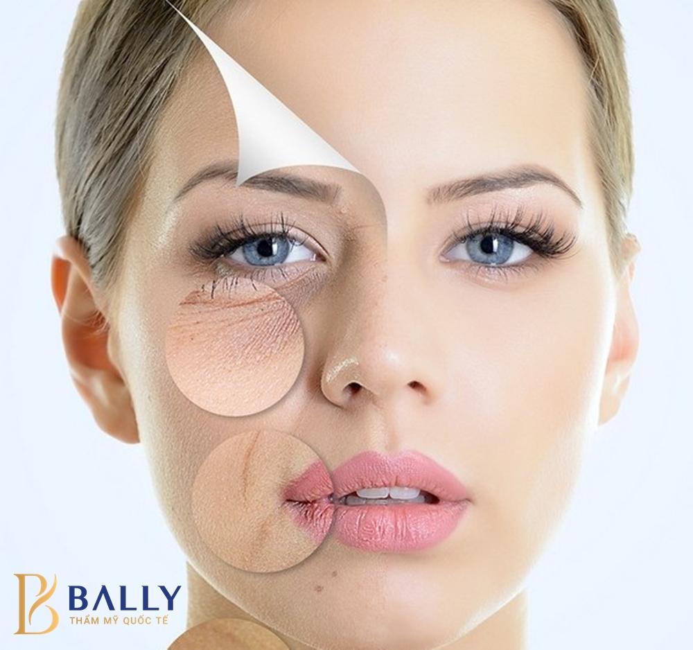 tác dụng của căng chỉ da mặt