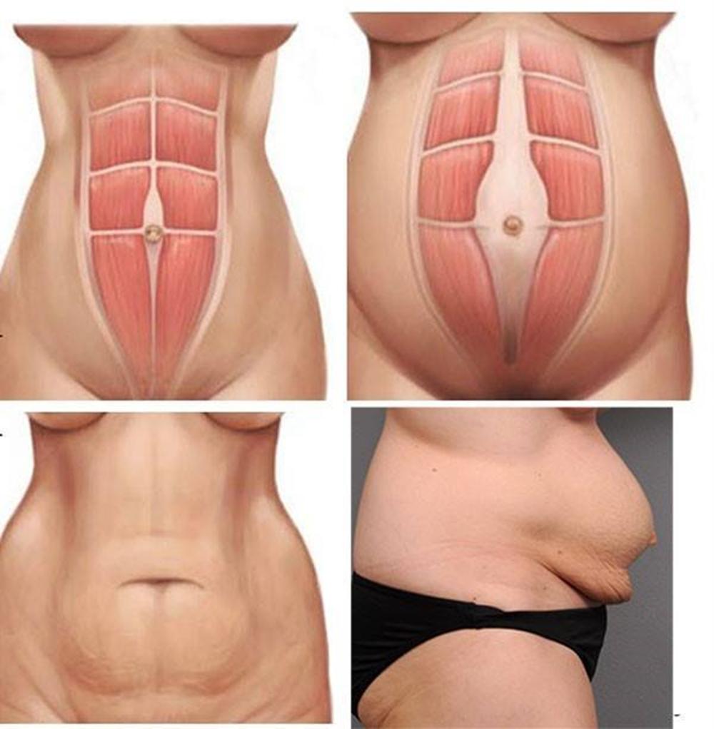 giảm béo bụng sau sinh mổ