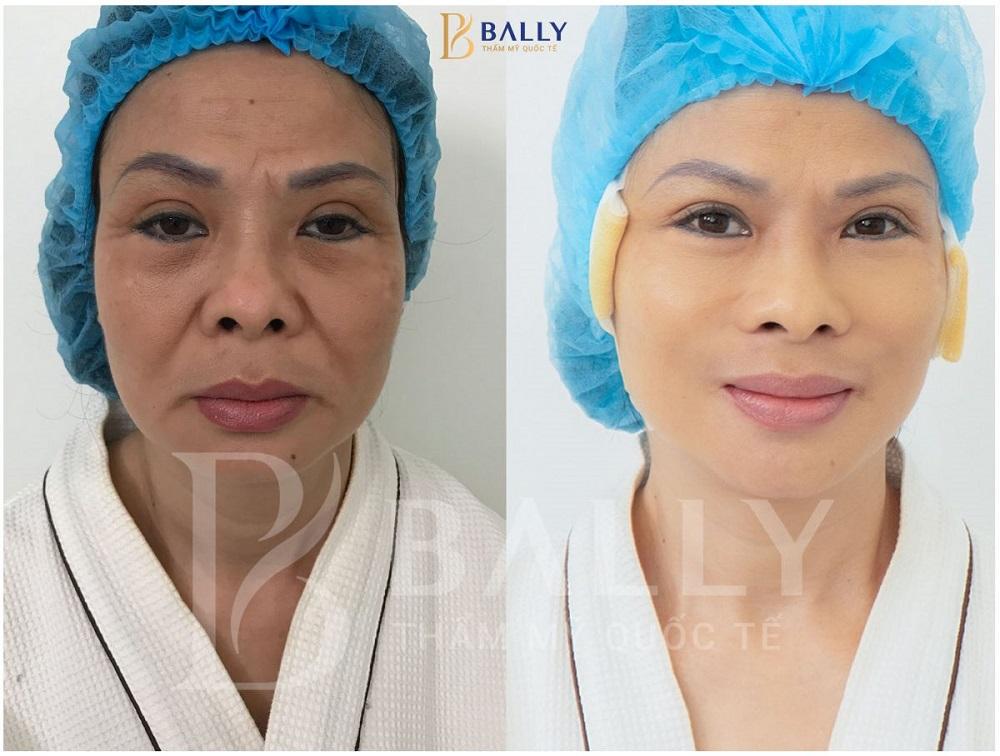 phương pháp căng chỉ da mặt